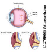 Macular hole, eps8