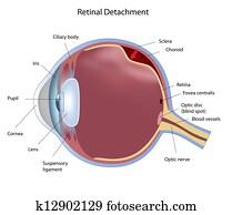 Retinal detachment, eps8