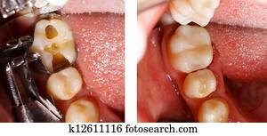 Tooth filling by dentist