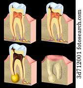 Caries is the localized, progressively destructive disease of the teeth.