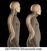 Kyphosis (right) vs. normal spinal column (left).