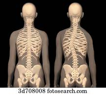 Scoliosis (right) vs. normal spinal column (left).