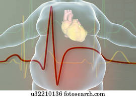 Myocardial Infarction Stock Images | Our Top 1000+