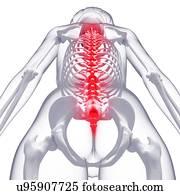 Back pain, artwork